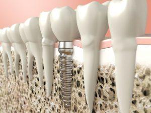 Implantat-zobna